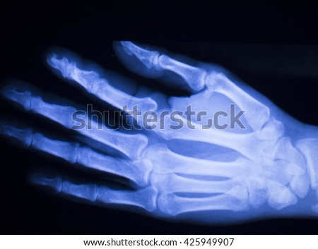 Hand and finger injury medical x-ray test scan result for adult patient with tendinitis strain.