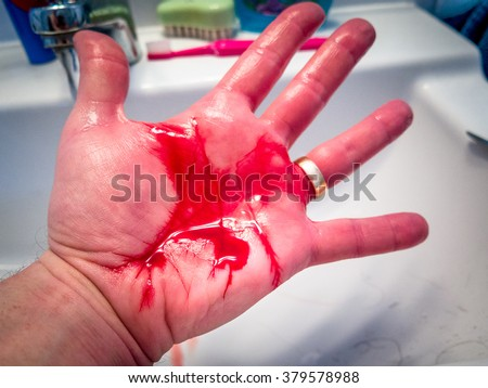 Hand Blue Medical Glove Holding Scalpel Stock Photo 515202001 Shutterstock