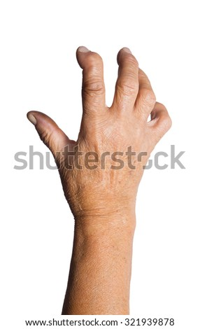 Hand Deformed From Rheumatoid Arthritis. Studio shot. Pain condition. Isolated on white