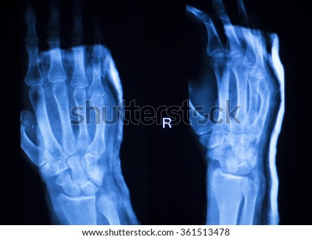 Hand, fingers and thumb hospital x-ray scan test results for joint pain and injury in orthopedic medicine and traumatology clinic. - stock photo