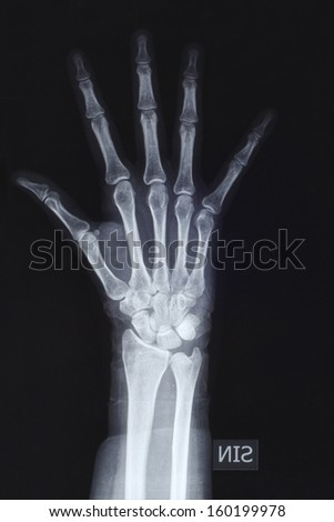 Hand in x-ray