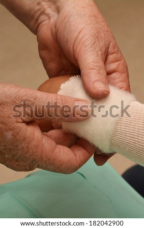 Hand of a Nurse apply orthopedic cast wrapped on a little girl in hospital room. - stock photo