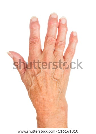 Hand of an old woman with arthritis, isolated on white - stock photo