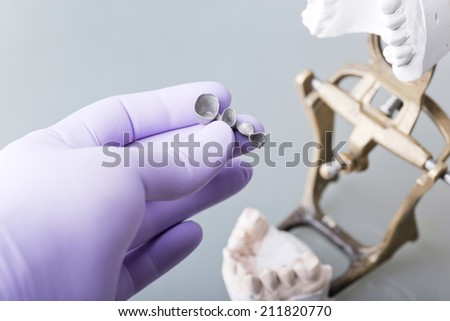 Hand of dentist holding dental gypsum models - stock photo