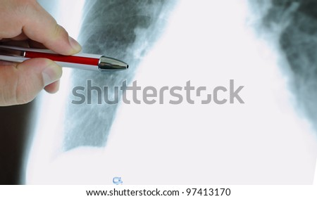 hand of the doctor with pen, pointing to an X-ray. photo. - stock photo