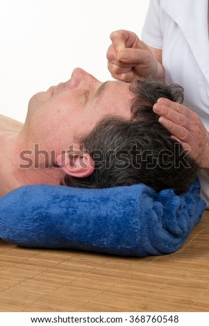 Hand placing acupuncture needle on person's back