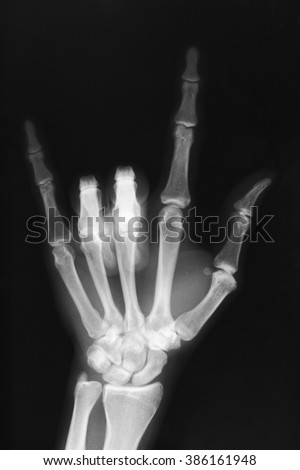 Hand sign (I love you ) X-ray film