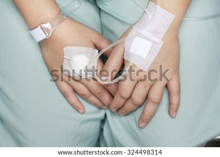 hand swollen by saline intravenous (iv).  - stock photo