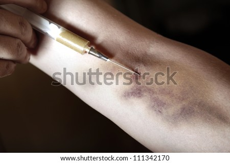 Hand with bruise and heroin syringe. Close-up photo. Natural colors - stock photo