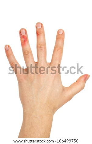 Hand with injured fingers  isolated on the white background - stock photo