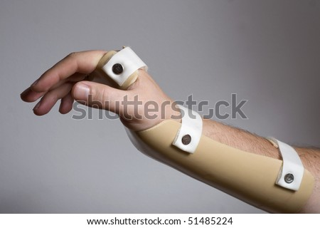 how to put splint for wrist drop