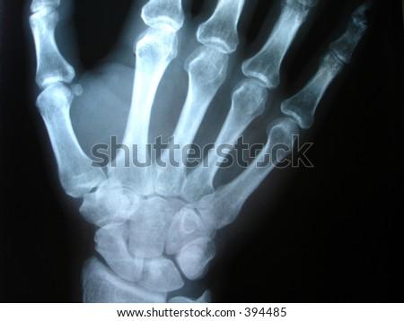hand x-ray - stock photo
