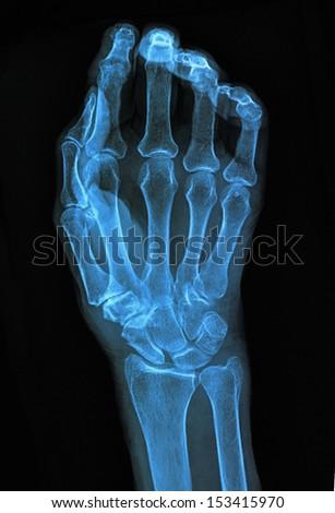 Hand xray image medical background - stock photo