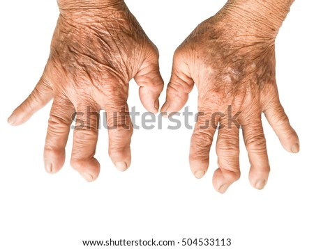 Rheumatoid Stock Images, Royaltyfree Images & Vectors. Consumer Reports Life Insurance. Farm State Car Insurance Define Birth Control. Network Simulation Software Open Source. Auto Insurance Teenage Drivers. Numbers 1 100 In Spanish Godaddy Dedicated Ip. Lowes Kitchen Renovation Cable In Minneapolis. College Of Criminology Hot Water Tank Calgary. Wealth Management Solutions Skin Tone Chart