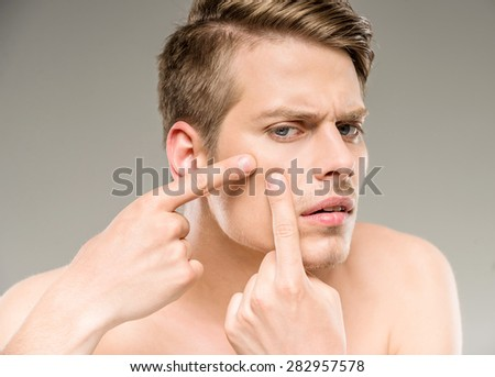 Handsome man touching his face. Squeezing pimple. - stock photo