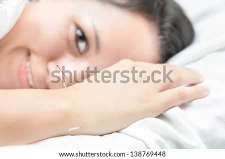 Happy Acupuncture patient with needles along arm - stock photo