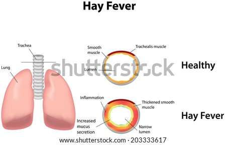 Hay Fever Labeled Diagram