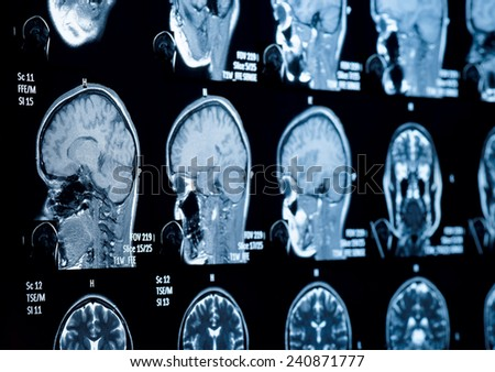 Head and neck MRI scan, private info deleted, shallow focus