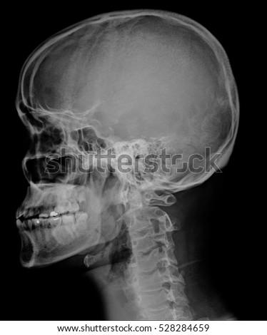 Head Skull Xray Side View Stock Photo (Royalty Free ... X Ray Views Of Skull