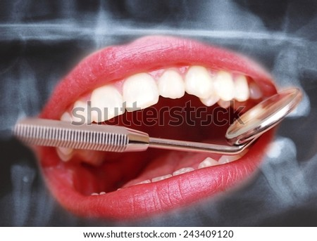 Health care. Closeup of human teeth and dental mirror on panoramic x-ray image scan background. - stock photo
