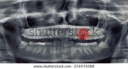 Healthcare and medical concept. Panoramic dental X-Ray of teeth with painful area - stock photo