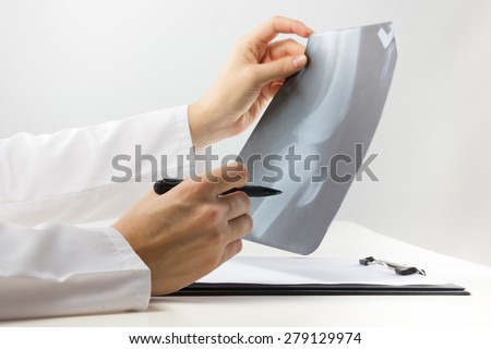 Healthcare and medicine concept - doctor with medical clipboard analyzing leg knee roentgen or x-ray radiography examination  - stock photo