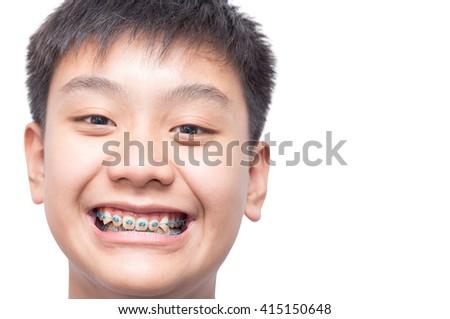 Healthy boy smiling show his teeth brace on isolated background. - stock photo