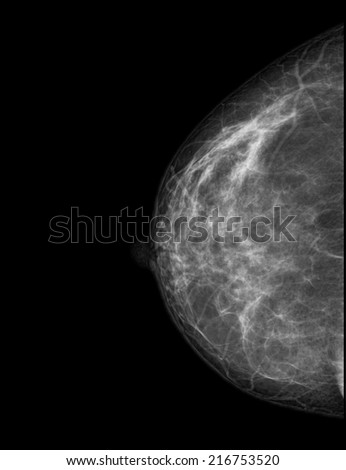 Healthy breast scan X-ray plate. - stock photo