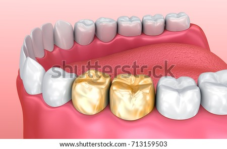 Healthy teeth and golden crowns, Medically accurate tooth 3D illustration