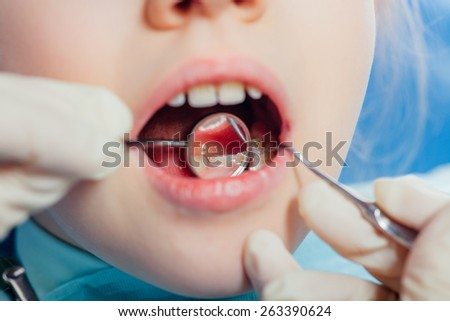 Healthy teeth in mouth of child, course of dental examination - stock photo