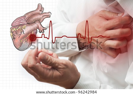 Heart Attack and heart beats cardiogram background - stock photo