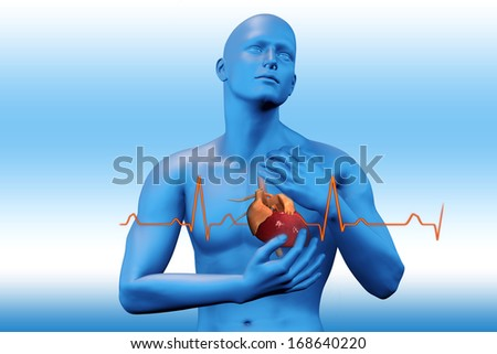Heart attack concept - stock photo