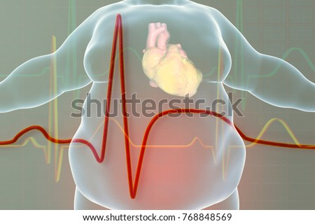 Heart Disease Person Obesity Conceptual Image Stock Illustration ...