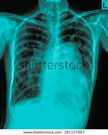 Heart failure ( film x-ray chest PA upright : show cardiomegaly and interstitial infiltrate both lung )