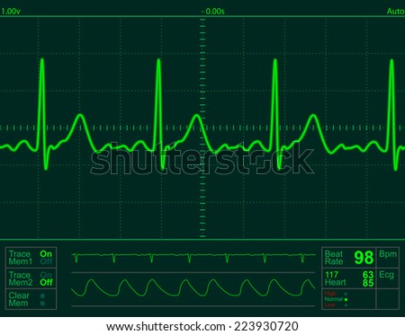 heart monitor screen with normal beat signal - stock photo
