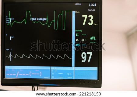Heart rate monitor at surgery room in hospital emergency, Israel - stock photo