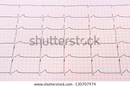 Heart rhythm chart for background usage - stock photo