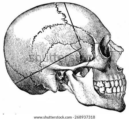 Heavy line indicating course taken by saw-cut in so called undertaker's method, vintage engraved illustration.  - stock photo