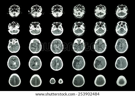 Hemorrhagic Stroke and Ischemic Stroke .  CT scan of brain : intracerebral hemorrhage ( 3 left column ) , cerebral infarction ( 3 right column )) ( Medical and Science background )