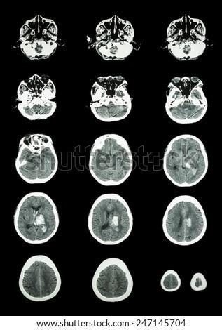 Hemorrhagic Stroke .  CT scan (computed tomography) of brain ( cerebrovascular system )  :  Intracerebral hemorrhage at left cerebral hemisphere - stock photo