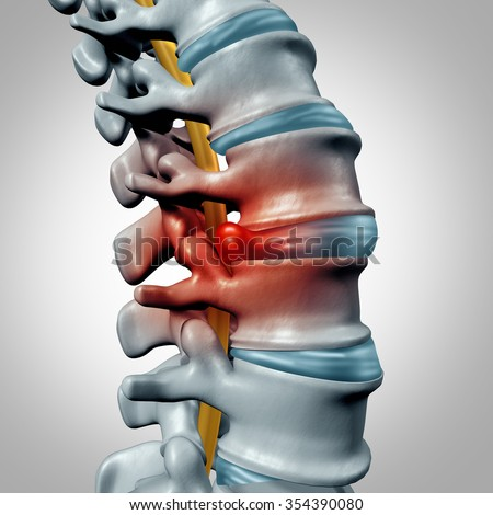 Herniated disk concept and spine pain diagnostic as a human spinal system symbol as medical health problem and anatomy symbol with the skeletal bone structure and intervertebral discs closeup. - stock photo