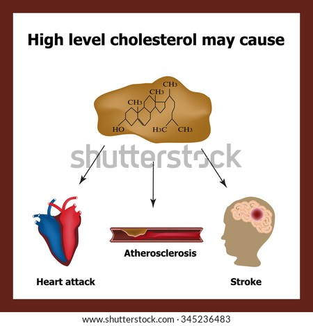 Atherosclerosis Stock Images, Royaltyfree Images. Shop Name Signs. Summer Heat Signs. Lightening Signs. Hotel Lobby Signs Of Stroke. Sensory Processing Signs. Framingham Stroke Signs. Kesihatan Signs Of Stroke. Metastatic Signs