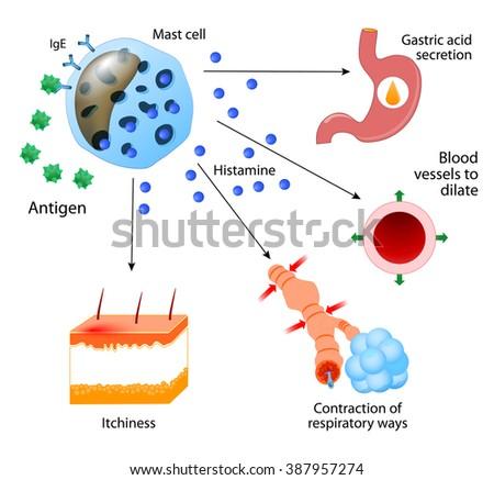 Histamine. local immune responses. Allergic reaction - stock photo