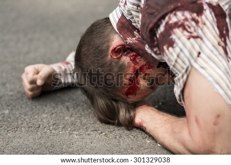 Horizontal view of casualty of terrorist attack - stock photo