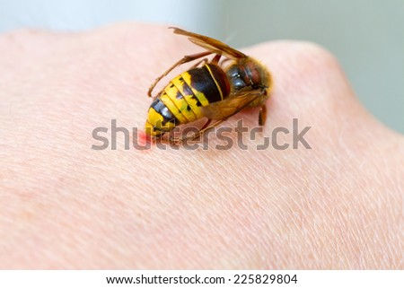 Hornet sting on hand - stock photo