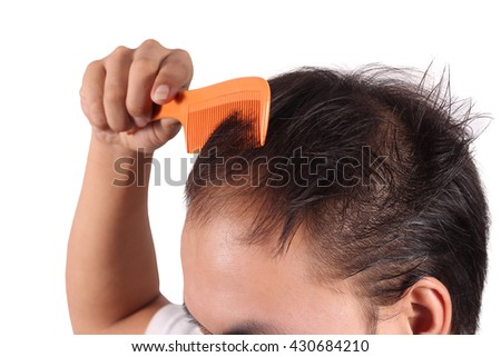 Human alopecia or hair loss - adult man hand holding comb on bald head - stock photo