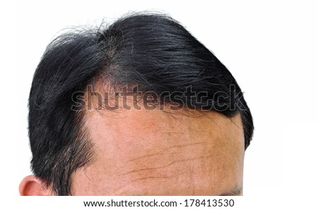 Human alopecia or hair loss problem and grizzly , shot from front view on white background - stock photo