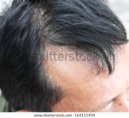 Human alopecia or hair loss problem and grizzly , shot from side view - stock photo