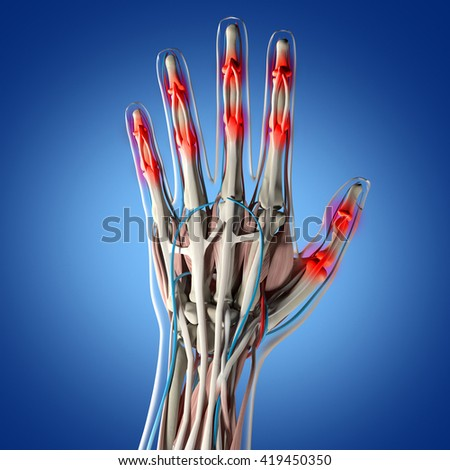 Human Anatomy Hand Arthritis Joint Pain Stock Illustration 419450350