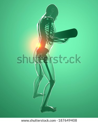 Human body with a weight and back pain, x-ray - stock photo